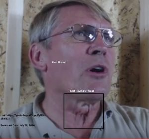 A Hovind Throat Update 07282016